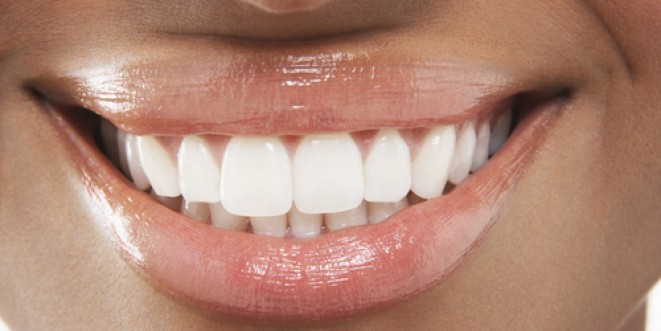 Keep Your Smile Pearly White Radiant Health Magazine