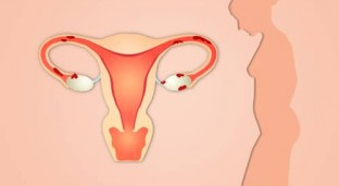Facts About Endometriosis