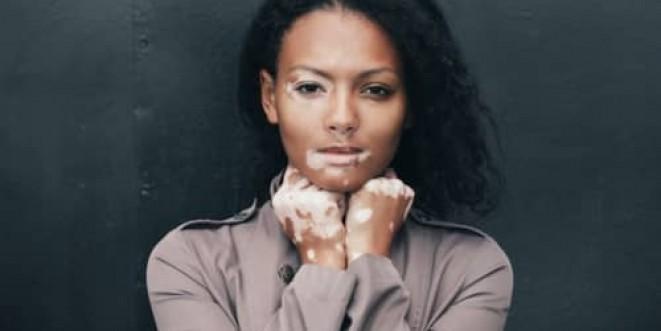 Understanding Vitiligo