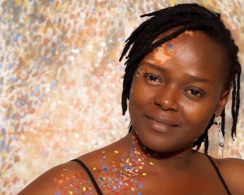 vitiligo survivor